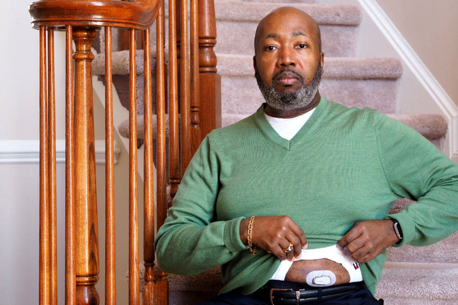 Trevis Hall, of Fort Washington, Maryland, credits a continuous glucose monitor with helping him get his diabetes under control. Makers of the device say that the instant feedback provides a way to motivate healthier eating and exercise. But experts point out that the few studies on the monitors show conflicting results.