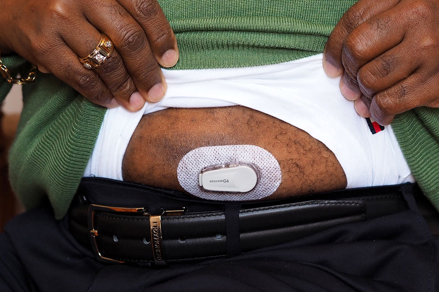 Trevis Hall's insurer gave him a monitor last year at no cost as part of a program to help control his diabetes. He says it doesn't hurt when he attaches the monitor to his belly twice a month.